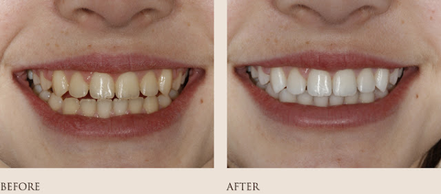 Whitening Before-After 1