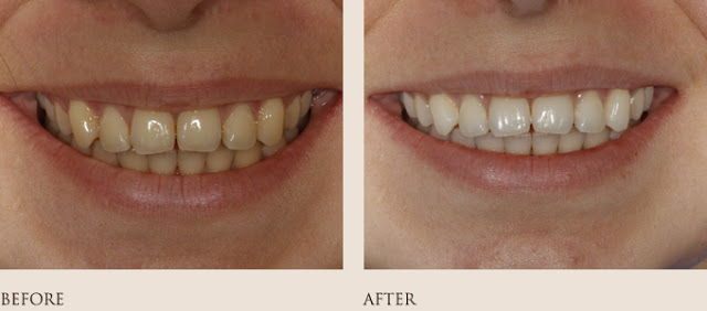Whitening Before-After 3
